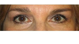 Manhattan BLEPHAROPLASTY after 1